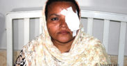 Fehmida Bibi, 38 years old, from Pakistan, a victim of preventable blindness